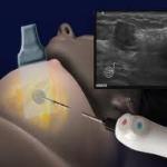 «Παγωμένη» μέθοδος εξολοθρεύει τον καρκίνο του μαστού