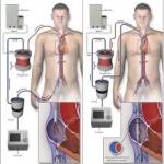 Ανασταίνει νεκρούς ασθενείς το μηχάνημα εξωσωματικής οξυγόνωσης ECMO
