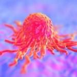 Φως στα γενετικά αίτια τριών κοινών καρκίνων