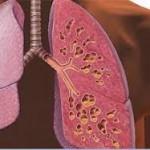 Επικίνδυνο βακτήριο μεταδίδεται μεταξύ των ασθενών με κυστική ίνωση