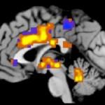 Οι μαγνητικές τομογραφίες «μετρούν» τον πόνο