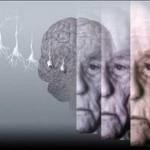 Οι αρρυθμίες της καρδιάς, πιθανό σημάδι για πρόωρη άνοια